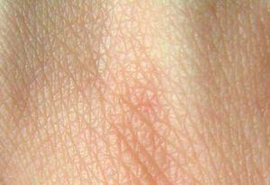 Postižení kůže