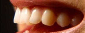 Problémy v ústech